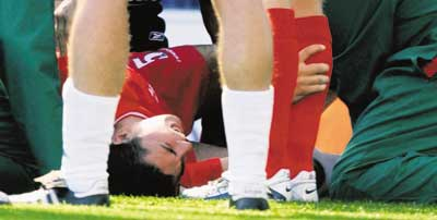 Baros in agony after ankle break